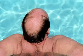 Image result for bald facts