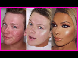 how i cleared my acne scars dylsxmakeup