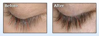 Idol Lash Eyelash Serum Before And After