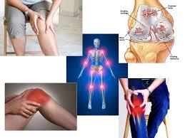 Pantangan penderita osteoartritis