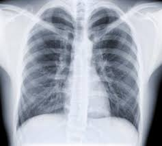Image result for Asthma breath medical x ray