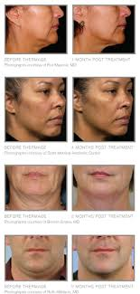 new thermage eyes face body lift winston m nc before after thermage face neck tightening contouring winston m nc
