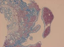 「小児下痢症患児」の画像検索結果