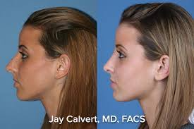 expert rhinoplasty secondary rhinoplasty in beverly hills