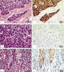 Low expression of bcl-2 in <b>Brca1</b>-associated breast cancers
