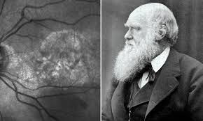 Image of Charles Darwin is spotted in patient's eye scan | Daily Mail ...