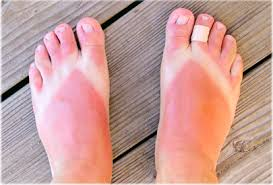 Image result for toddler sunburn