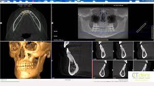 CT Dent i-<b>CAT Vision</b> Basic Navigation - YouTube