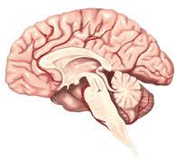 「脳卒中と評価項目」の画像検索結果