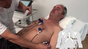 <b>SCHILLER</b> electrode placement for resting <b>ECG</b> with standard ...
