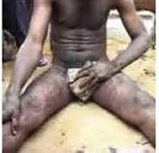 Image result for Lady Bites Off Man's Penis With Teeth In Lagos