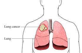 SYMPTOMS OF LUNG CANCER STAGE 2