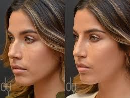 best ideas about cirurgia plastica no nariz 17 best ideas about cirurgia plastica no nariz nariz empregos rinoplastia and cirurgia rinoplastia