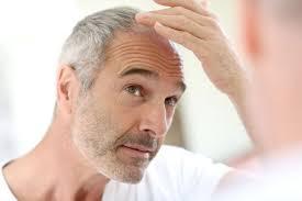 Народные методы лечения облысения у мужчин