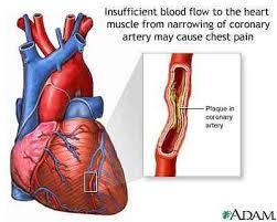 Señales  Ataque Cardiaco