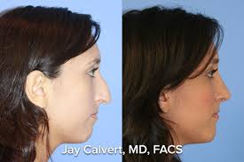 primary rhinoplasty female by dr jay calvert plastic surgeon primary rhinoplasty by dr jay calvert