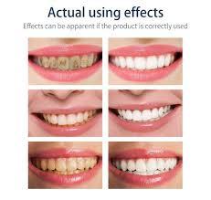 <b>Fresh Shining Tooth</b>-<b>Cleaning</b> Mousse <b>Toothpaste</b>
