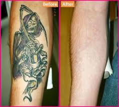 How to Remove a Tattoo With Home Remedies