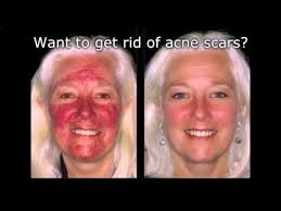 how to cover acne scars if you want to easy makeup transformation routine how to cover acne