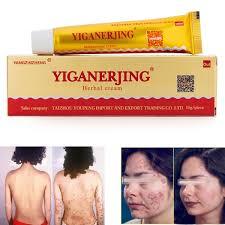 YiGanErJing <b>Natural Herbal Herbal Cream</b> for <b>Psoriasis Eczema</b> ...