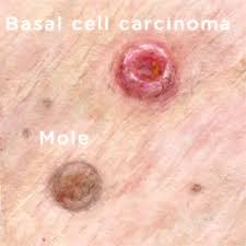 Image result for basal cell cancer