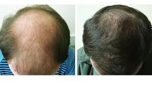 Супер-рецепт для волос, начинают расти даже на лысинах ...