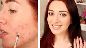 how to cover a pimple mild acne scarring makeup tutorial for acne