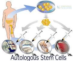BMAC celule stem