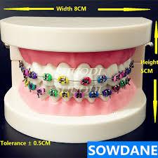 <b>Dental Orthodontic</b> Treatment <b>Model With</b> Ortho Metal Bracket Arch ...