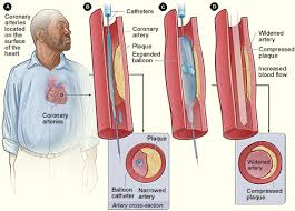 Image result for angioplasty