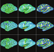 Research Article Cortical Surface Reconstruction from <b>High</b> ...