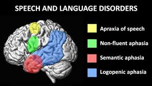 Image result for language disorder
