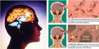 ออกกำลังกายสมอง ต้านอัลไซเมอร์...