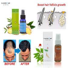 Средство от выпадения <b>волос</b> lantome, <b>тоник</b>, <b>спрей</b> для роста ...