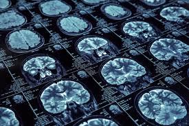 Biogen Alzheimer Drug Not a Done Deal as BIIB Stock Surges ...