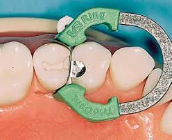 dental matrix sectional matrices matrix bands tofflemire stuck s m l dental material set