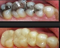 Image result for ترمیم کامپوزیت دندان
