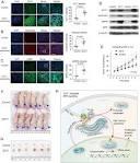 octamer transcription factor-1