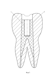 Способ и <b>набор</b> для винтовой <b>фиксации</b> металлокерамических ...