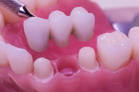 """Résultat de recherche d'images pour """"bridge dentaire"""""""