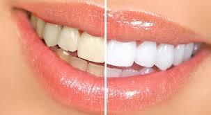 Image result for Cách làm trắng răng ngay tại nhà bằng dâu tây