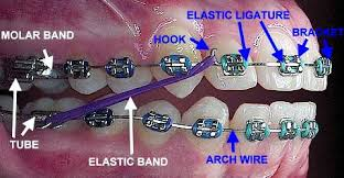 Image result for photos braces