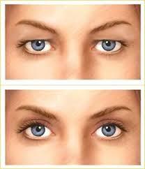 Prije i poslije operacije  vjeđa - blefaroplastike